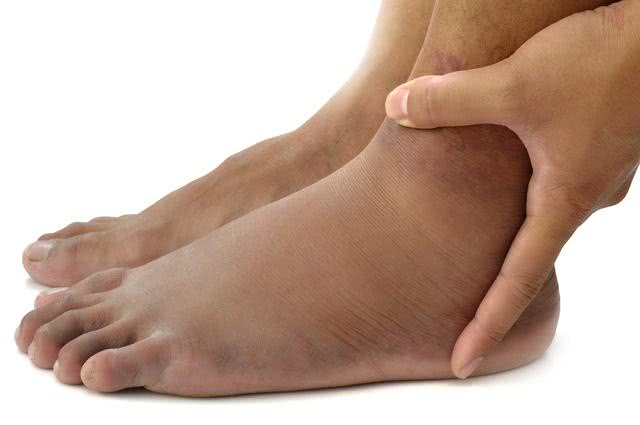Imagem de pés inchados